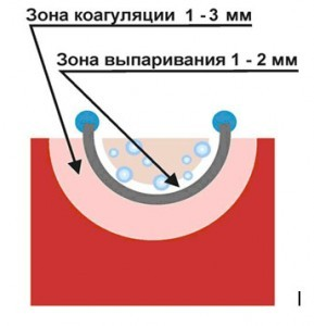Рис. № 4. Глубина образования зоны выпаривания и коагуляции при использовании «выпаривающей» петли.