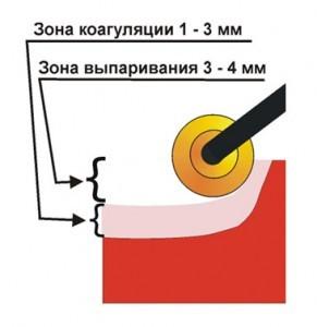 Рис. № 3 Глубина образования зоны выпаривания и коагуляции при использовании валикового электрода.