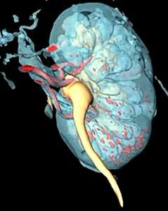 Компьютерное моделирование при опухоли почки