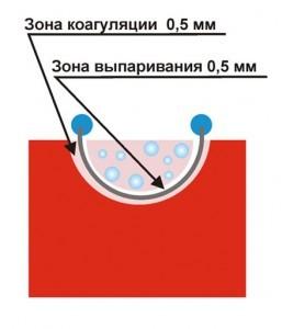 Рис. № 2. Глубина образования зоны выпаривания и коагуляции при использовании стандартной режущей петли.