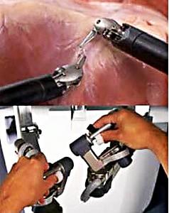 Лапароскопия (робот Да Винчи)