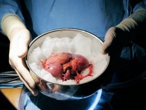 Возможные осложнения при пересадке почки