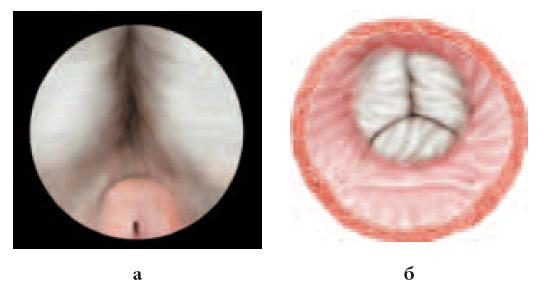 Рис. 1. Предварительный этап. Определение ориентиров зоны вмешательства: а – боковые доли простаты и семенной бугорок; б – вид боковых долей гиперплазии и устья мочеточников «со стороны мочевого пузыря»