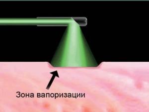 Зеленый лазер Green Light Laser (схема зоны воздействия)