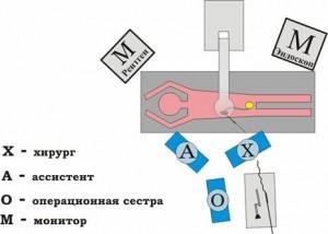 Рис.1. Взаиморасположение «излучатель - пациент - операционная бригада» при антеградных операциях.