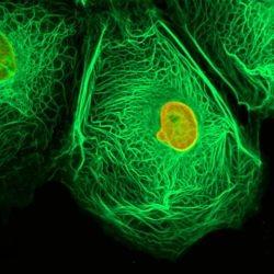Ранняя дивгностика рака мочевого пузыря