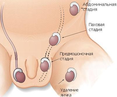 Факторы влияющие на неопущение яичек у детей