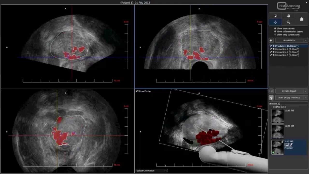 Рисунок 5 - В правом нижнем углу рисунка показана 3D модель патологического участка в момент биопсии предстательной железы.