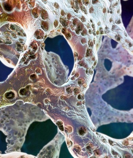 Изменения в костной ткани при возрастном андрогенном дефиците