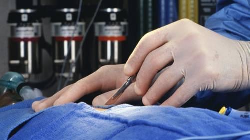 Хирургическое лечение варикоцеле позволяет избавится от преждевремнного семяизвержения