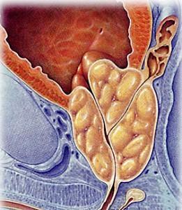 Гиперактивный мочевой пузырь при аденоме, лечим…