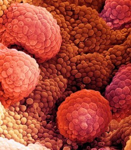 Таргетная терапия рака простаты