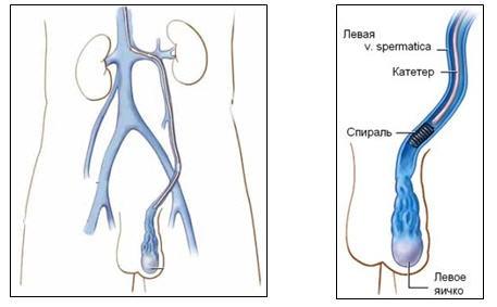 Опыт эндоваскулярного лечения варикоцеле